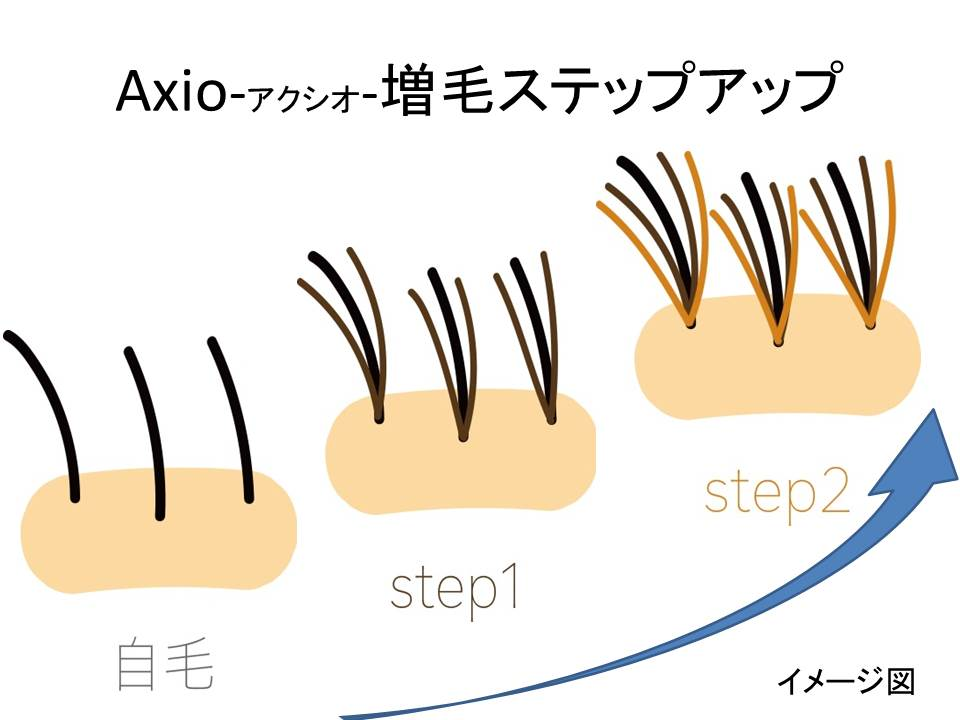 Axioナチュラルアップ 増毛